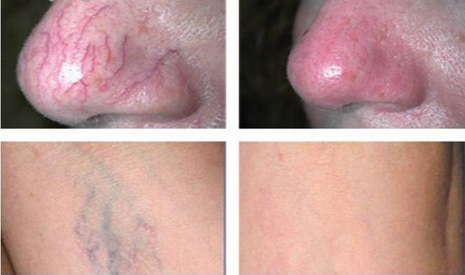 980nm laser before and after 3.jpg